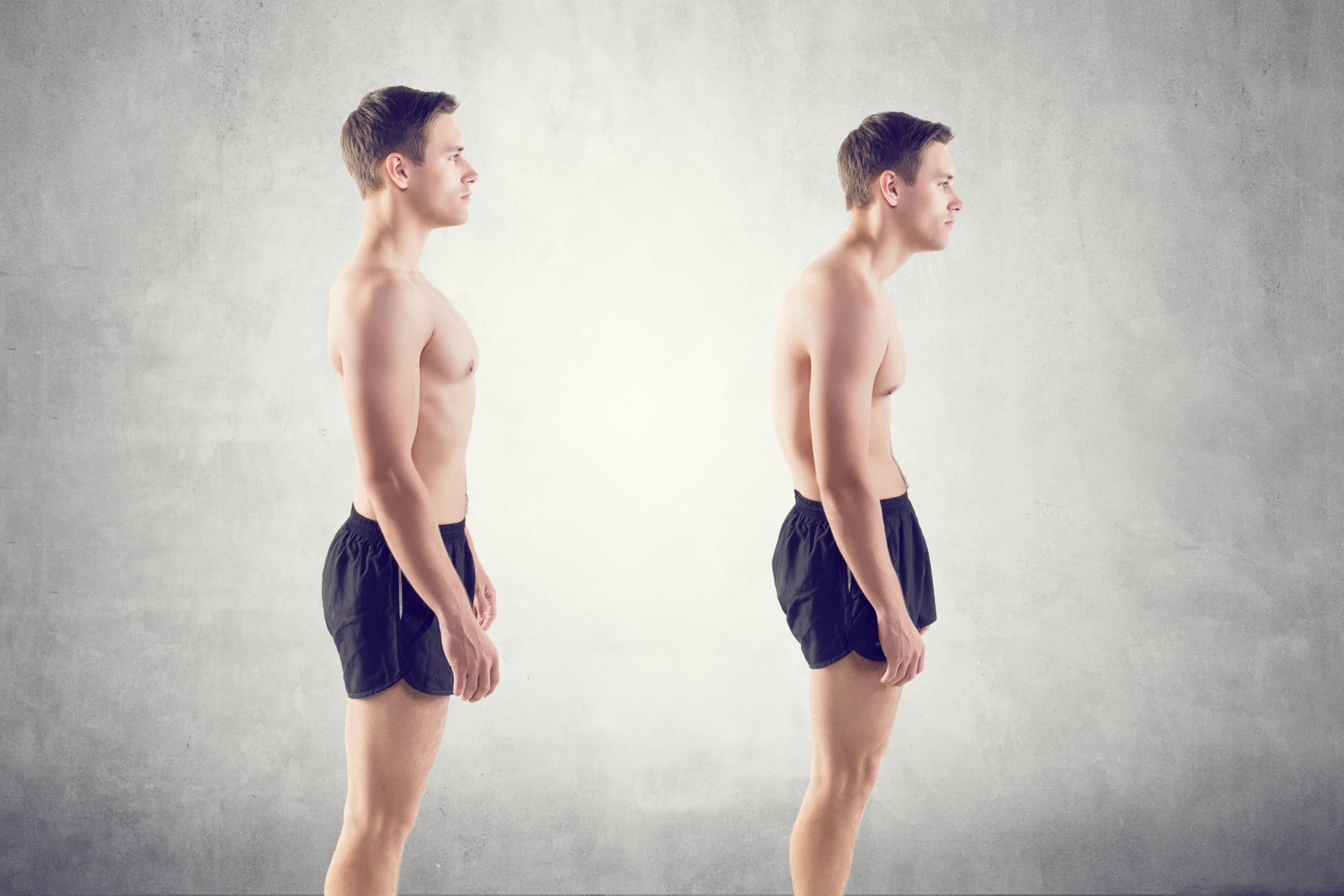 Man with impairMan with impaired posture position defect scoliosis and ideal bearing.